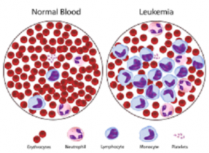 my medical cannabis journey leukemia cells