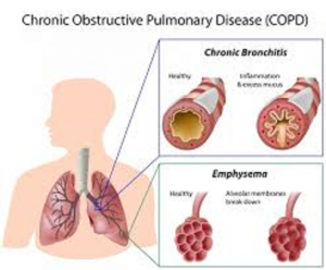 cannabis ease copd